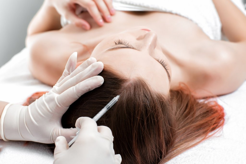 Мезотерапия для волос: принцип действия